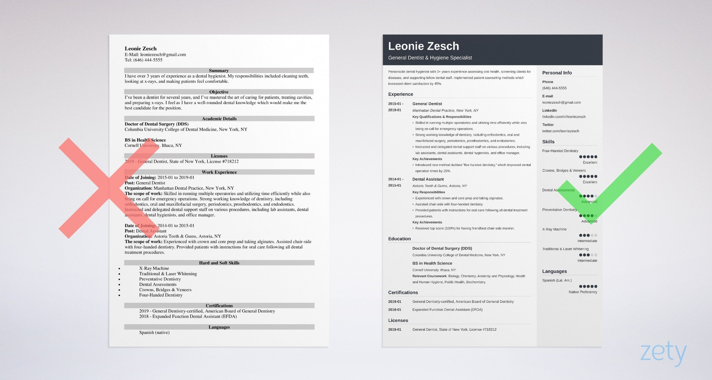 dentist resume template examples guide format for freshers example strong cover letter Resume Resume Format For Dentist Freshers